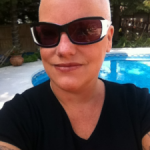 The Self-Reflection From My Bald Head